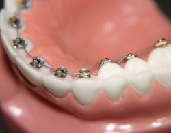 vnutrennie-braces-05