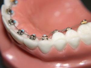 vnutrennie braces 05 300x225 - vnutrennie-braces-05