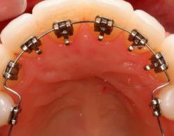 vnutrennie-braces-06