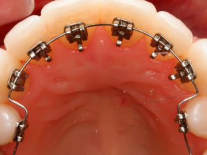 vnutrennie braces 06 300x225 - vnutrennie-braces-06