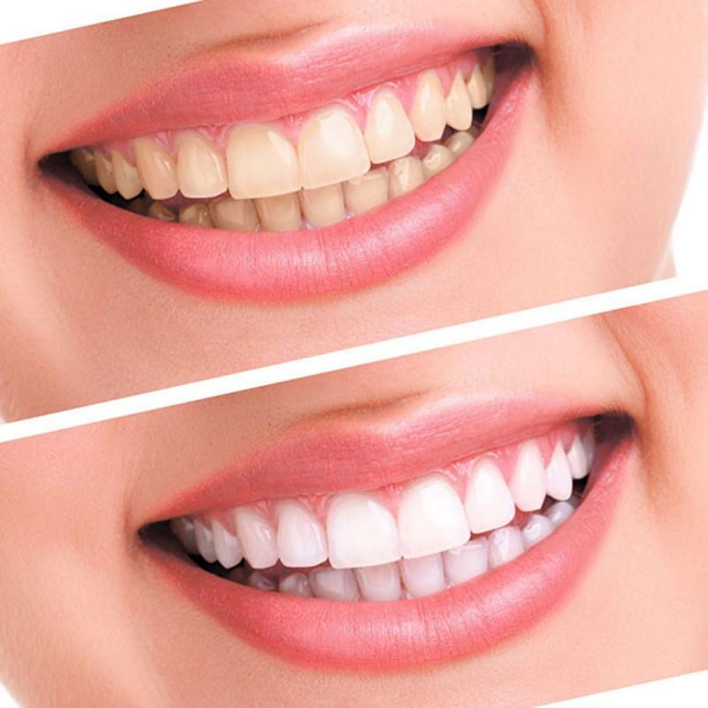 1183817940 1 - Отбеливание зубов