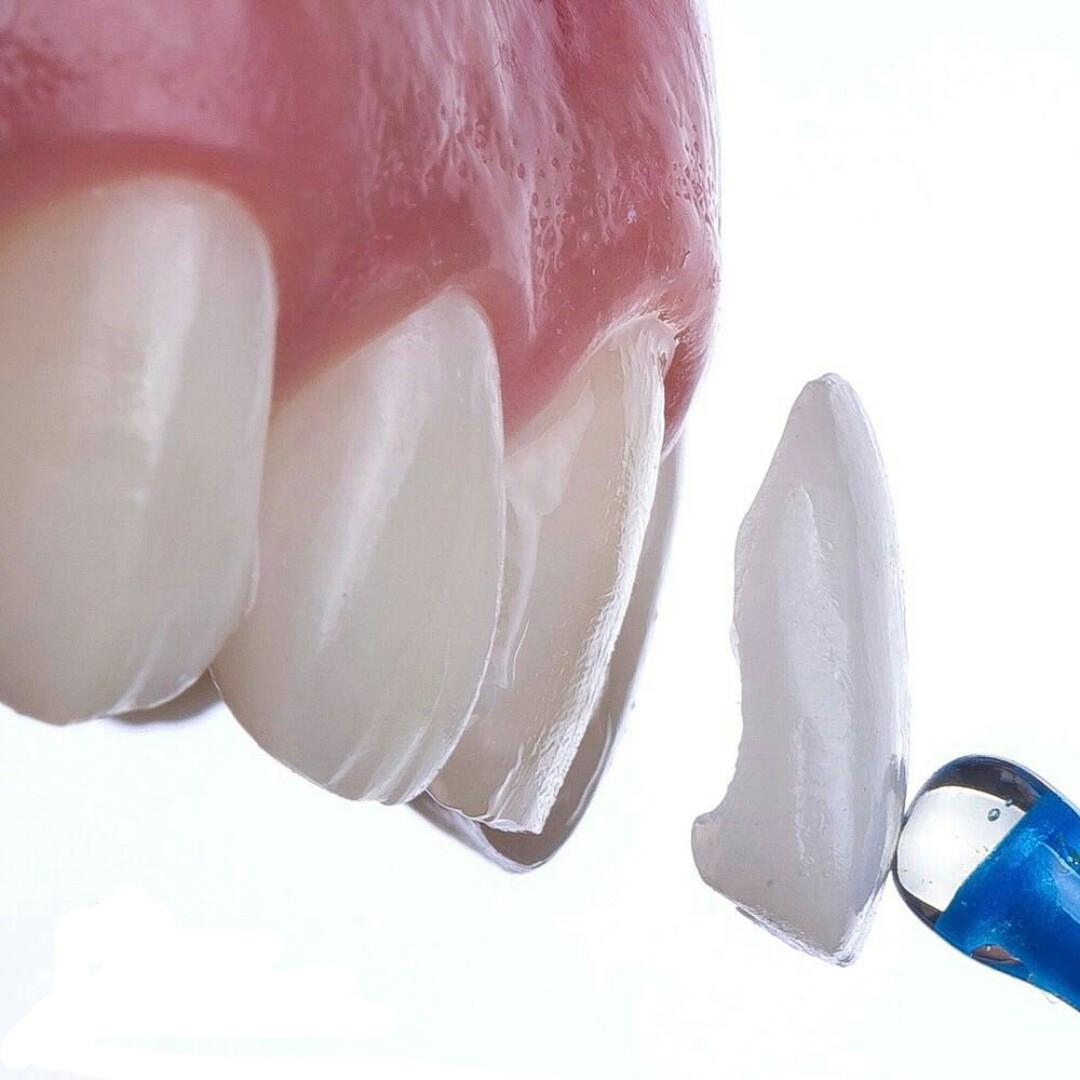 Viniry ladent - Виниры на зубы