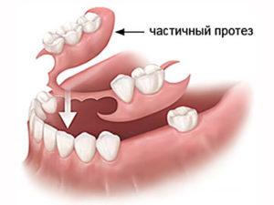 chastichnyi protez 300x225 - Частично съемные протезы