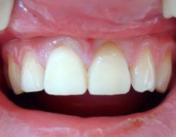 koronki-na-zuby-1