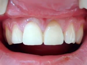 koronki na zuby 1 300x225 - koronki-na-zuby-1