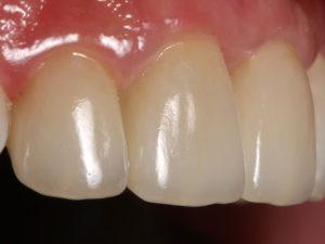koronki na zuby 2 300x225 - koronki-na-zuby-2