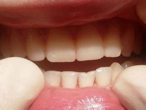 koronki na zuby 3 300x225 - koronki-na-zuby-3