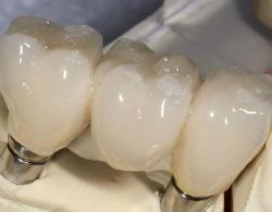 koronki-na-zuby-4