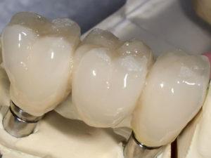 koronki na zuby 4 300x225 - koronki-na-zuby-4