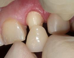 koronki-na-zuby-5