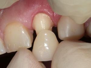 koronki na zuby 5 300x225 - koronki-na-zuby-5