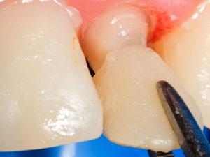 koronki na zuby 6 300x225 - koronki-na-zuby-6