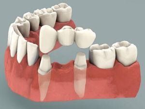 mostovye protezy6 300x225 - mostovye-protezy6