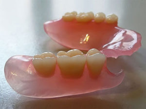 nylonpr 300x225 - Нейлоновые зубные протезы