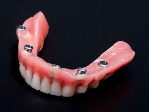 pokryvnye protezy2 300x225 - pokryvnye-protezy2