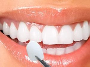 veneers001 300x225 - Виниры на зубы