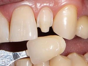 viniry 300x225 - Виниры на зубы