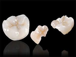 vkladki na zuby 300x225 - Керамические вкладки