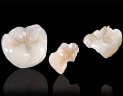 vkladki-na-zuby1