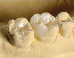 vkladki-na-zuby2