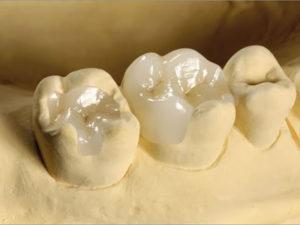 vkladki na zuby2 300x225 - vkladki-na-zuby2