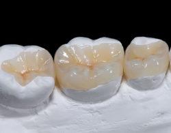 vkladki-na-zuby3