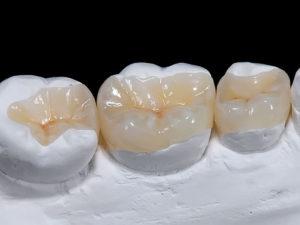 vkladki na zuby3 300x225 - vkladki-na-zuby3