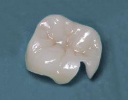 vkladki-na-zuby5
