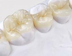 vkladki-na-zuby6