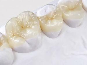 vkladki na zuby6 300x225 - vkladki-na-zuby6