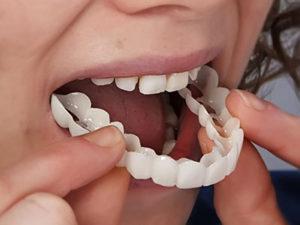 zubprotez 300x225 - Зубные протезы