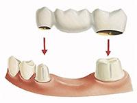 zubprotez most - Мостовидные зубные протезы
