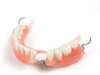 zubprotez plast - Пластмассовые протезы