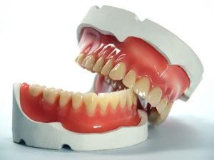 zubprotez02 300x225 - Съемные зубные протезы