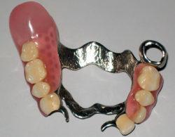 zubprotez03