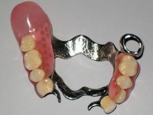 zubprotez03 300x225 - zubprotez03
