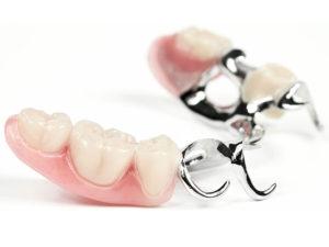 zubprotez04 300x225 - zubprotez04