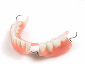 zubprotez05 300x225 - zubprotez05