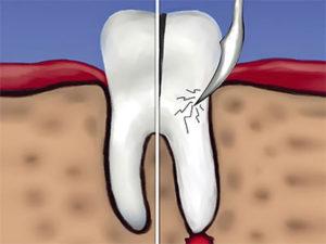 gemisekcija kornya zuba 00 300x225 - Гемисекция корня зуба