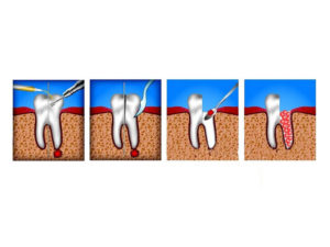 gemisekcija kornya zuba 02 300x225 - gemisekcija-kornya-zuba-02