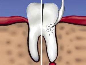 gemisekcija kornya zuba 03 300x225 - gemisekcija-kornya-zuba-03
