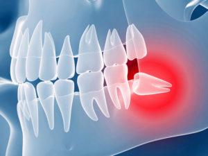 retinirovanniye zuby 01 300x225 - Удаление ретинированного дистопированного зуба
