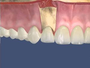 rezekciya zuba 01 300x225 - rezekciya-zuba-01