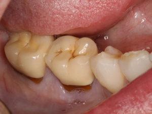 rezekciya zuba 05 300x225 - rezekciya-zuba-05