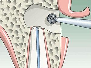 rezektsiya zuba2 300x225 - Цистэктомия зуба