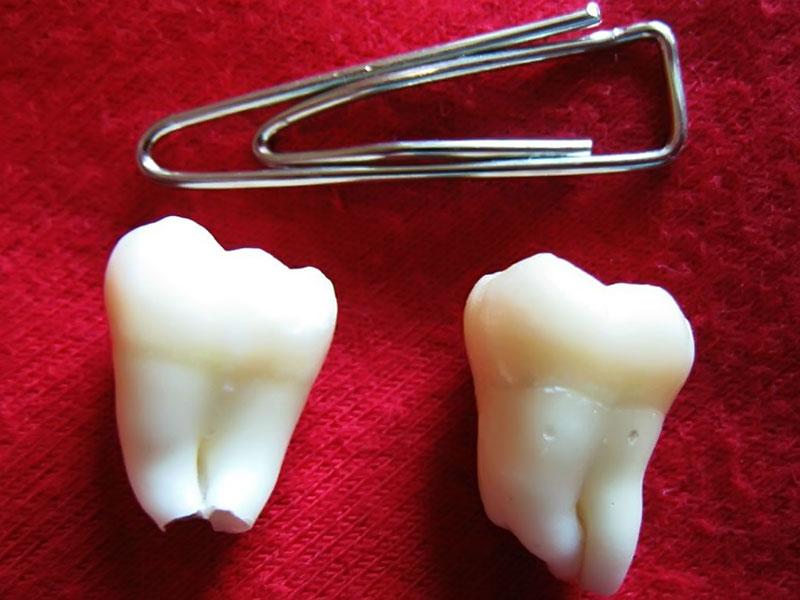 Как выдернуть зуб молочный в домашних условиях