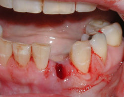 udalenie-zuba-05