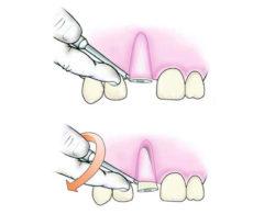 udaleniye-kornya-zuba
