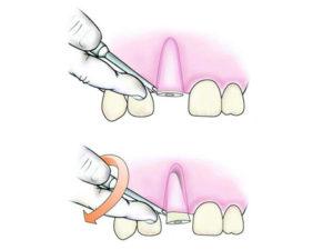 udaleniye kornya zuba 300x225 - udaleniye-kornya-zuba