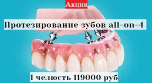 banner slider 09 300x165 - banner-slider-09